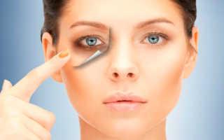 Как избавиться от синяков и припухлости в области глаз