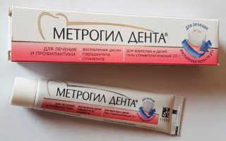 Гель для десен Метрогил Дента — инструкция по применению