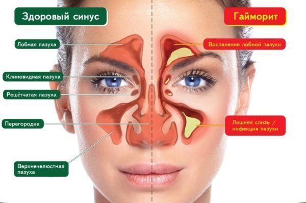 Капли Синупрет для лечения заболеваний дыхательных путей