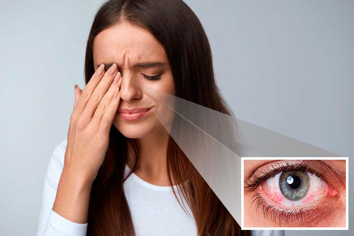 Глазные капли Баларпан: инструкция, аналоги и цена