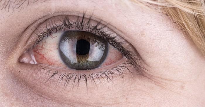 Глазные капли Ирифрин для взрослых и детей