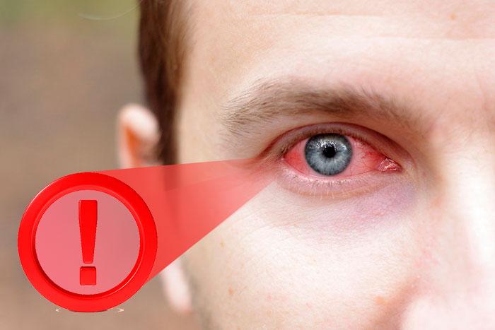 Дексаметазон: для чего назначают глазные капли