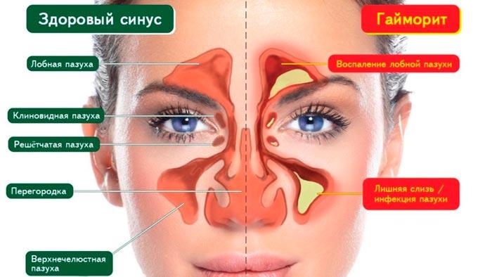 Капли в нос Изофра – инструкция, отзывы
