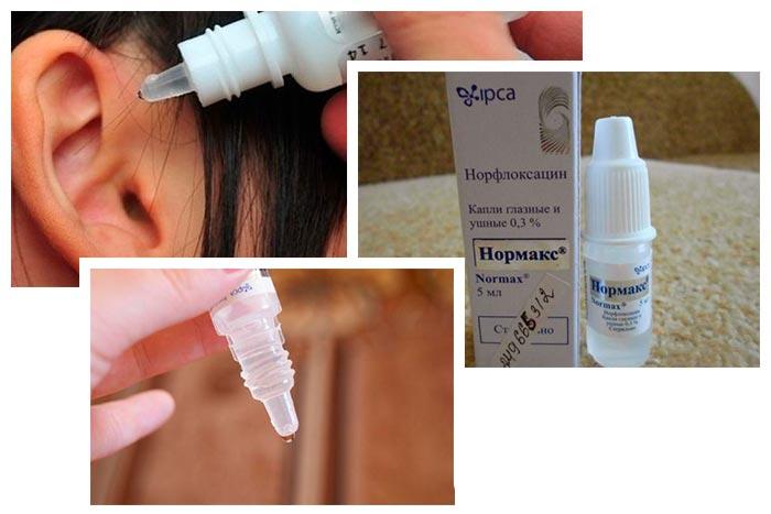 Показания и инструкция по применению ушных капель Нормакс