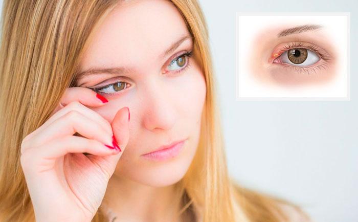 Глазные капли Тауфон – для чего назначают