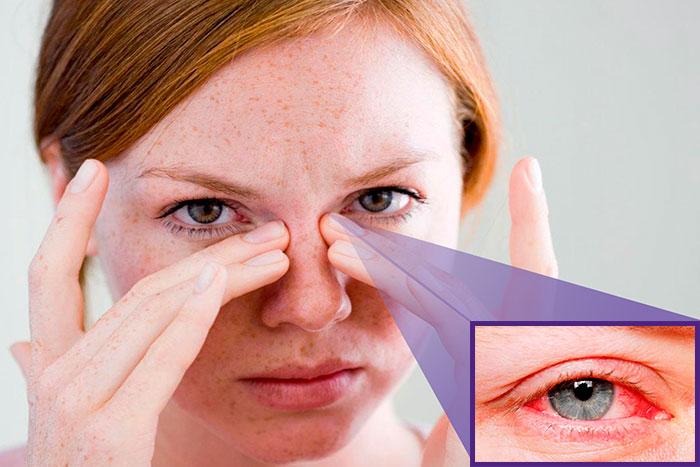 Инструкция по применению глазных капель Левофлоксацин