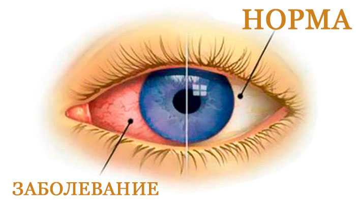 Глазные капли для детей Витабакт – инструкция