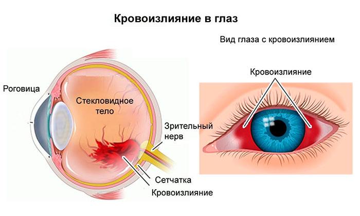 Инструкция по применению глазных капель Виксипин