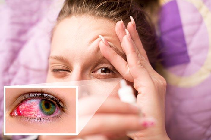 Глазные капли Сигницеф - инструкция и аналоги