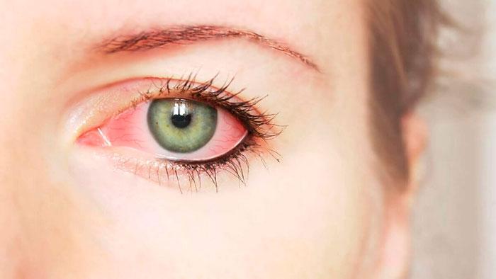 Глазные капли Цикломед – инструкция и аналоги