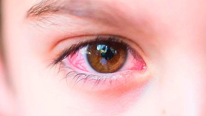 Глазные капли Чистая слеза – инструкция