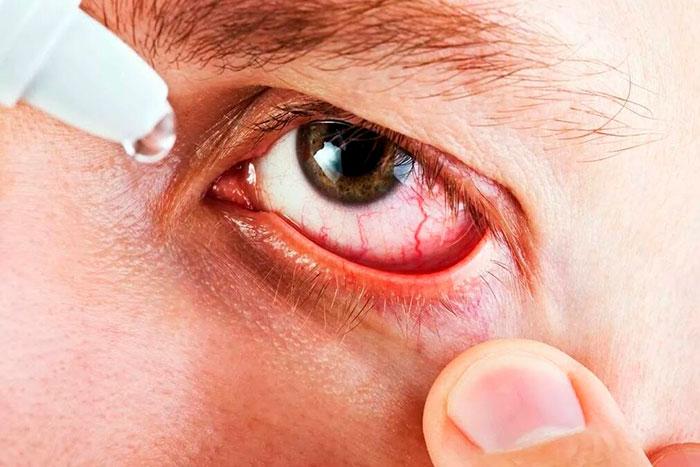 Инструкция по применению глазных капель Дикло Ф