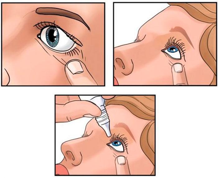 Фуциталмик - инструкция по применению у детей