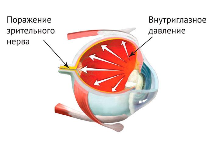 Глазные капли Максидекс - инструкция по применению
