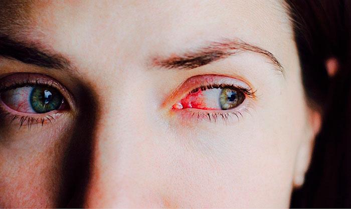 Инструкция по применению глазных капель Пилокарпин