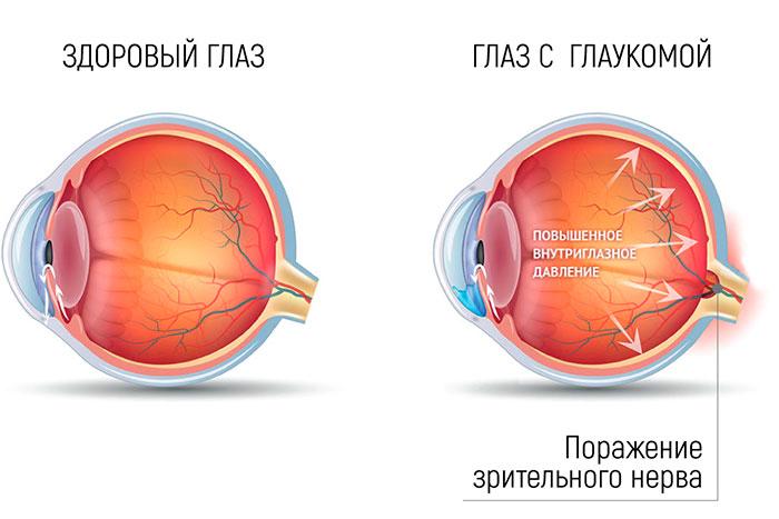 Арутимол глазные капли инструкция по применению