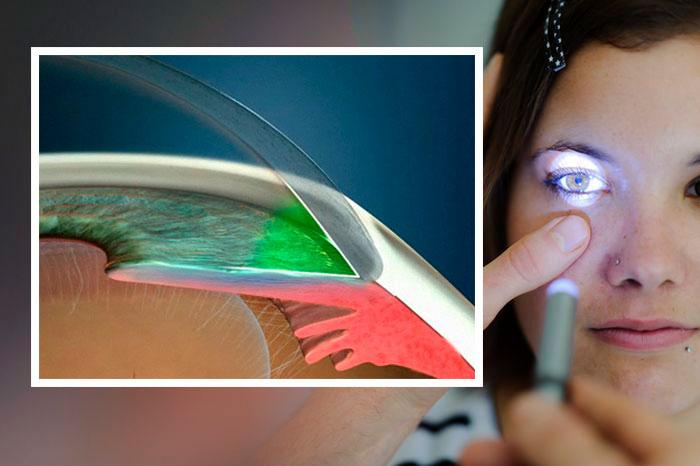Глазные капли Ганфорт: инструкция по применению и отзывы