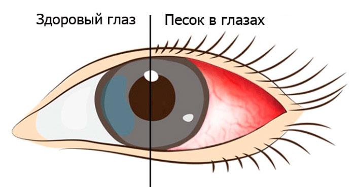 Как применять глазные капли Глаумакс: инструкция и отзывы