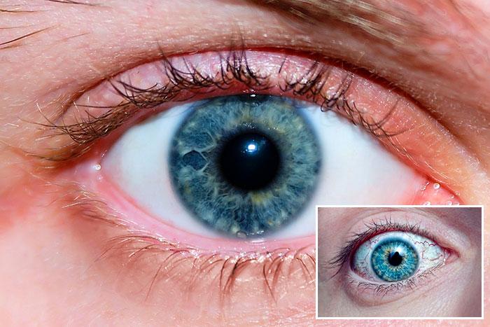 Инструкция по применению глазных капель Инокаин