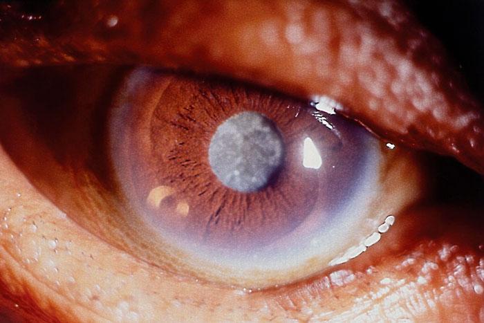 Глазные капли йодид калия – инструкция по применению и отзывы