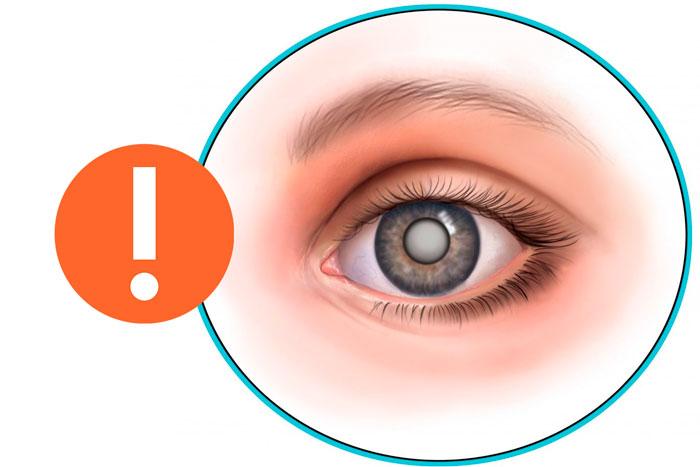 Глазные капли Максифлокс - инструкции по применению и аналоги