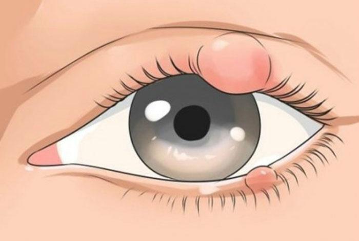 Эффективные капли от ячменя на глазу для детей и взрослых