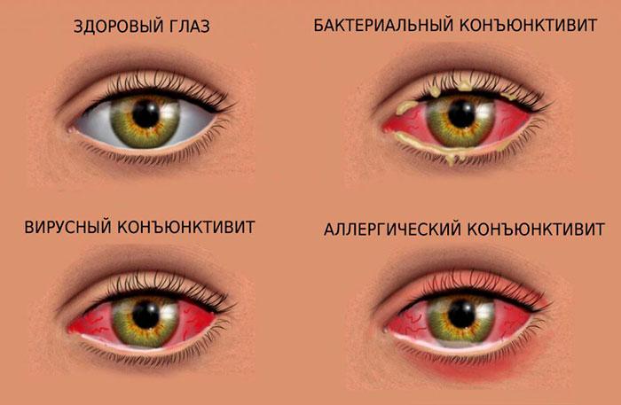 Список глазных капель для детей от гноя