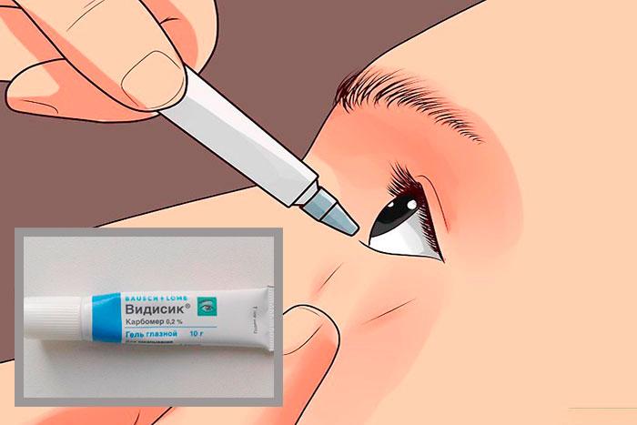 Как применять глазные капли Видисик: инструкция и отзывы