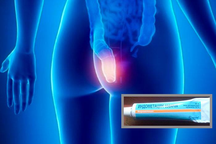 Как применять мазь Индометацин - инструкция и отзывы
